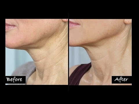 systeme neck cream before after