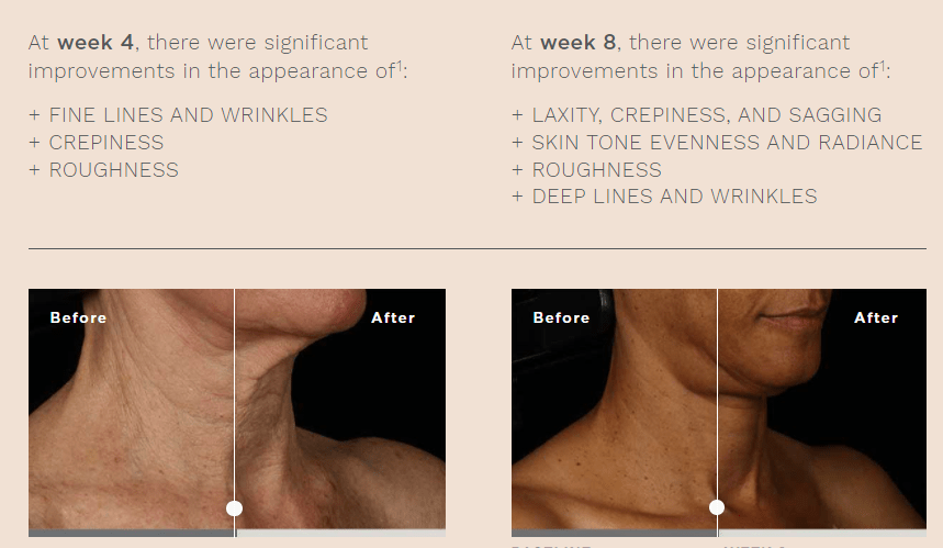 skinmedica neck correct cream before after