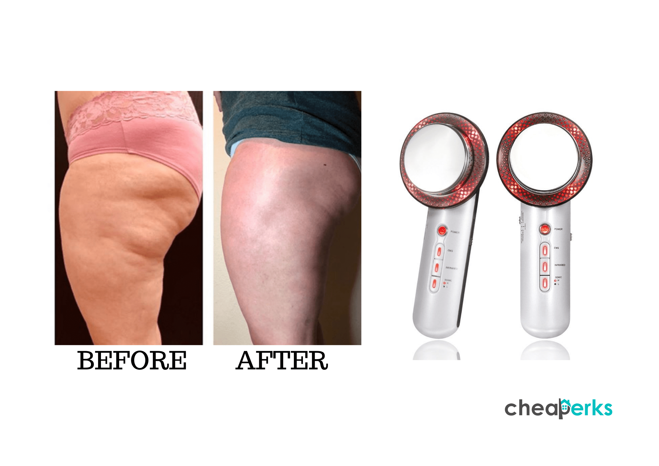ultrasonic cellulite remover before and after
